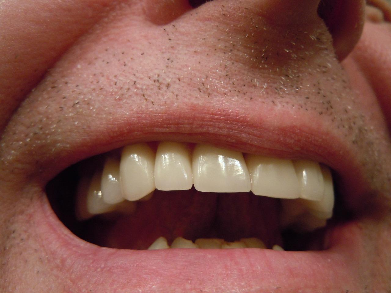 Conoce todas las ventajas de las coronas dentales de zirconio-PIXA